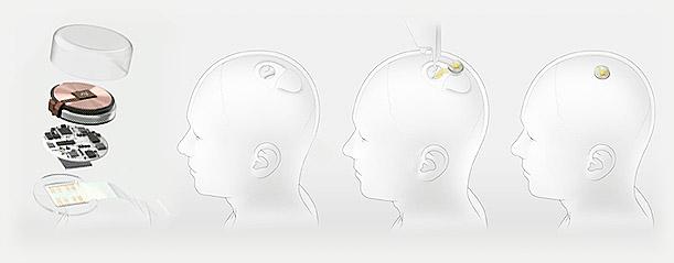 neuralink implante